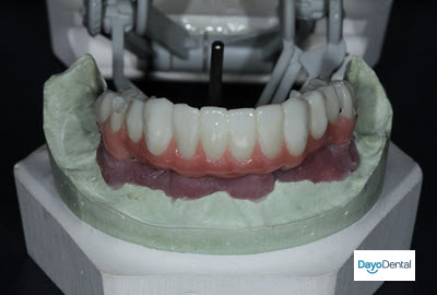 What is the Cost of Full Mouth Dental Implants in Mexico