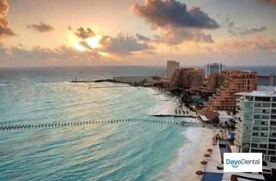 dental implants in Mexico Cancun dental trip