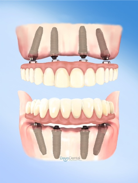 All on 4 dental implants illustration, picture image angled implant post