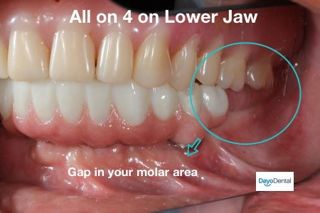 Denture Implants vs Fixed Bridge - Teeth Replacement Options