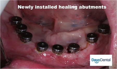 All on 8 dental implants bottom jaw with Mexico dentist. Oral surgery for full mouth implants