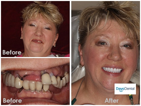 Before and After Dentures Implants Permanent Dentures Implant Tooth Replacement