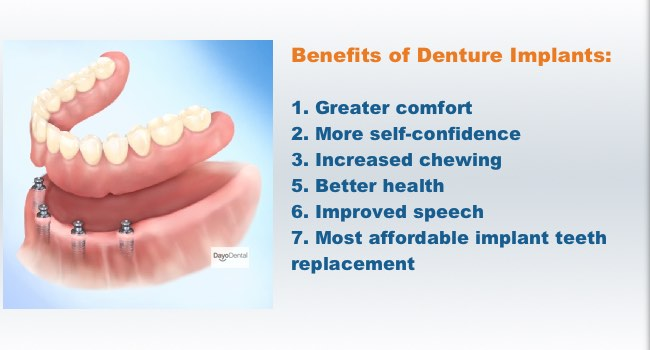 Benefits of Dentures Implants. Pros and Cons of Snap on dentures