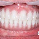 Denture Implants vs Fixed Bridge: Your Ultimate Guide to Full Teeth Replacement Options
