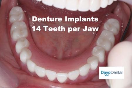 Denture Implants vs Fixed Bridge - Teeth Replacement Options