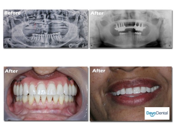 All on 7, All on 6 dental implants Fixed Bridge Example Before and After