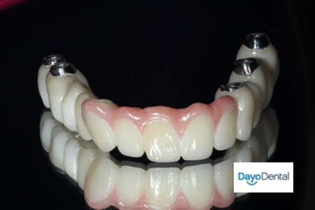 Fixed Zirconia Bridge Full Upper teeth Upper Jaw Picture How think is it