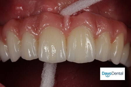 How to clean and floss a fixed bridge or all on four dental implants