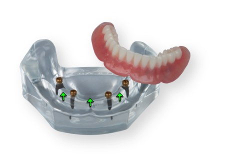 Overdentures snap on denture implants, how to clean implant dentures