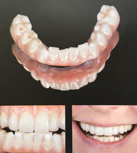 Prettau Zirconia Fixed Bridge Cost to replace missing teeth