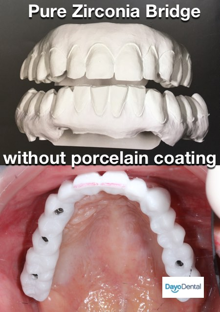 Pure Zirconia bridge implant tooth replacement needs porcelain to create natural look