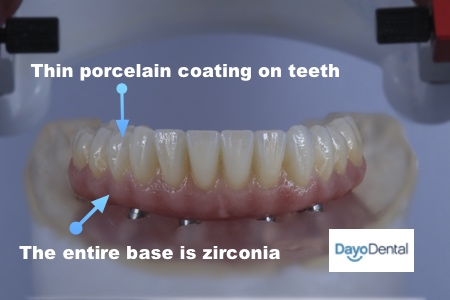 composition of zirconia teeth full implant bridge teeth replacement