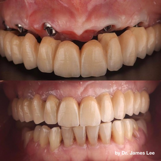 Zirconia Fixed Bridge with thin gums, No gum permanent dentures implant teeth replacement