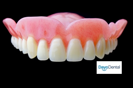 temporary dentures after a full upper and lower implanted teeth surgery