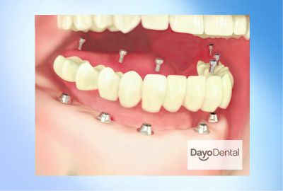 Zirconia Fixed Bridge Full upper and lower All on 6 Implants in Mexico