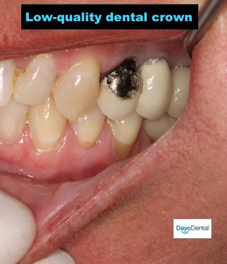 Issues with dental crown. Bad dental crown work.