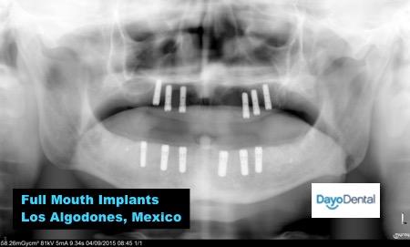 Full Mouth Implants Los Algodones - Molar City Mexico