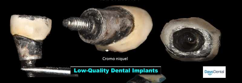 Bad dental implant work in Los Algodones Mexico Sample Pic