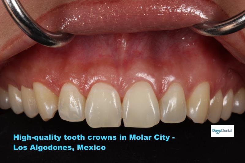 Tooth Crown in Los Algodones - Molar City Cost