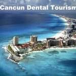 37 Cancun Dental Tips to Ensure the Best Dental Tourism Vacation in Mexico