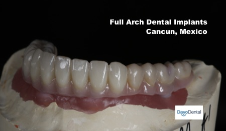 Full arch implants Cancun dentist, dental tourism