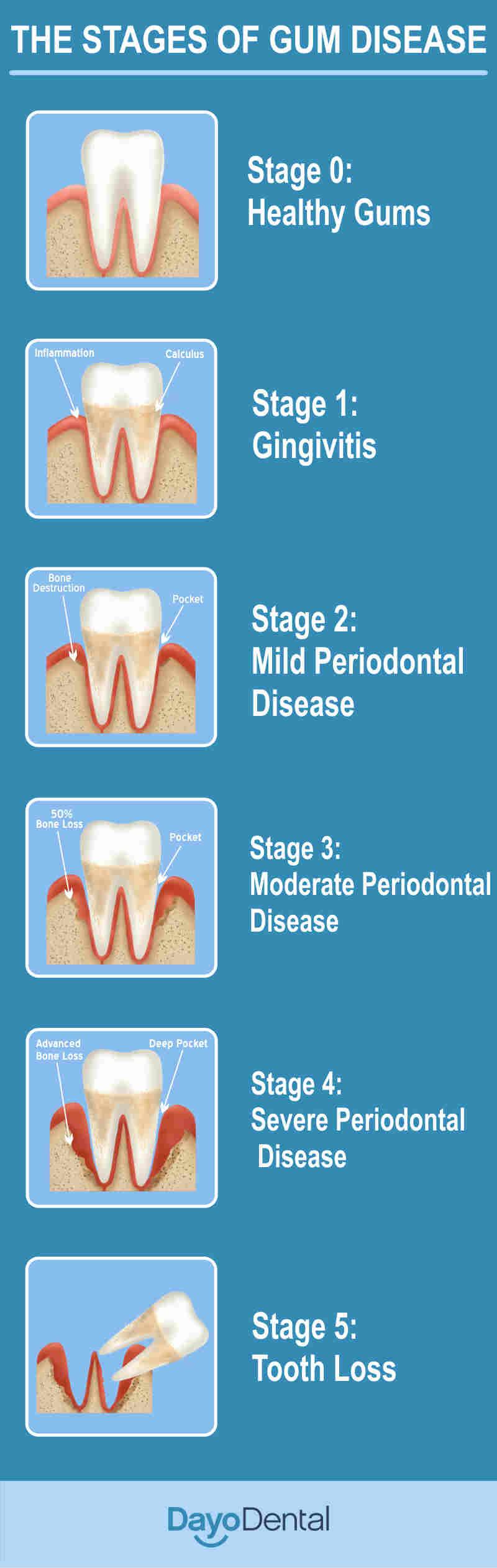 Stages of Periodontal Disease - Gum Disease