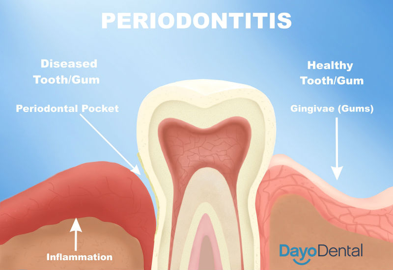 Periodontitis - Healthy vs Bad Gums