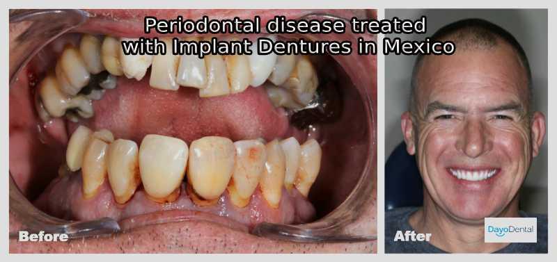 Periodontal Diseease Treamtent Dental Implants Mexico