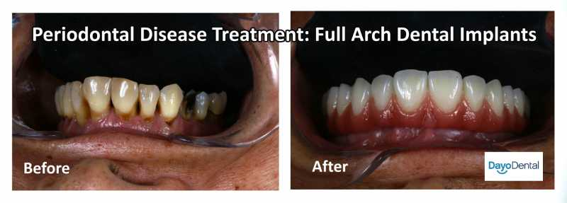 Your Ultimate Guide to Periodontal Disease - Periodontitis