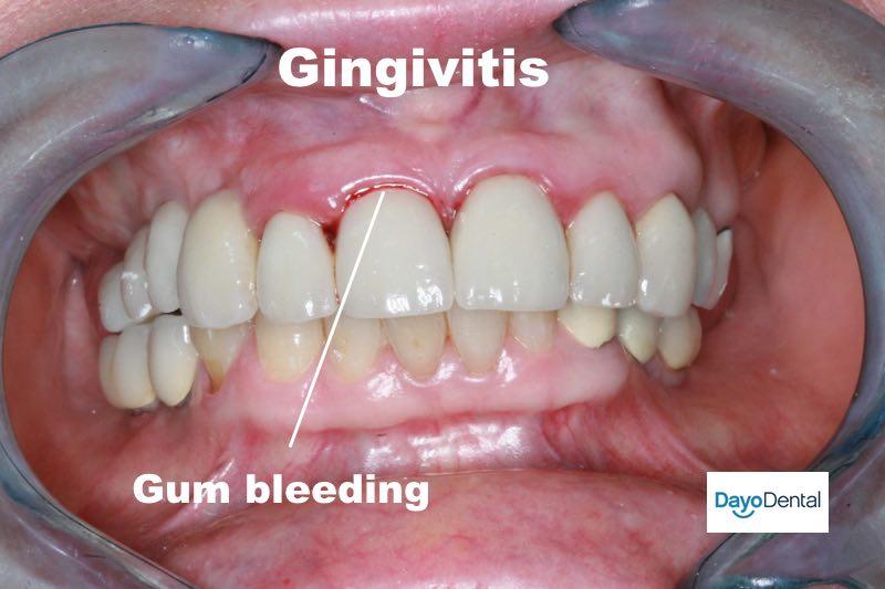 Gingivitis with bleeding gums