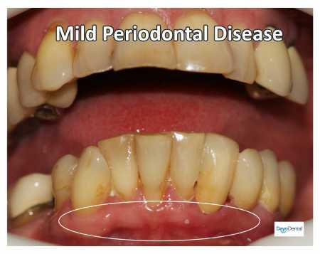 Mild periodontal gum disease
