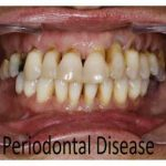 67 Q&As Crucial To Periodontal Disease or Periodontitis