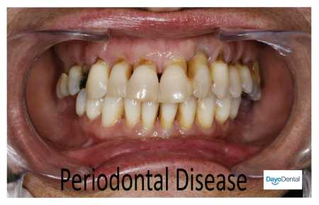 Periodontal disease is a common dental problem. But many people are not aware and are not educated about this gum issue. This article will provide you a comprehensive knowledge about the disease. You will also get tips on how to avoid or manage the disease, including affordable options for treatment.