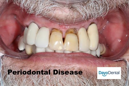 Periodontal disease picture - image on front teeth