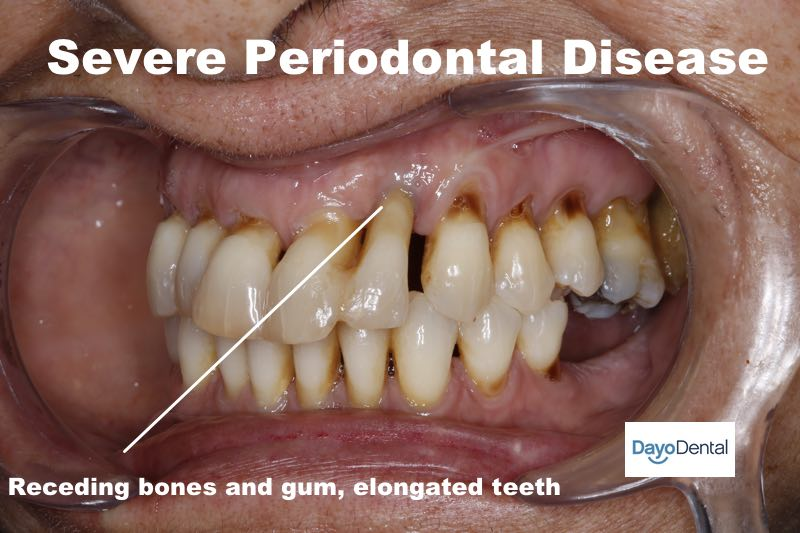 Severe Periodontal Disease, Advanced peridontitis
