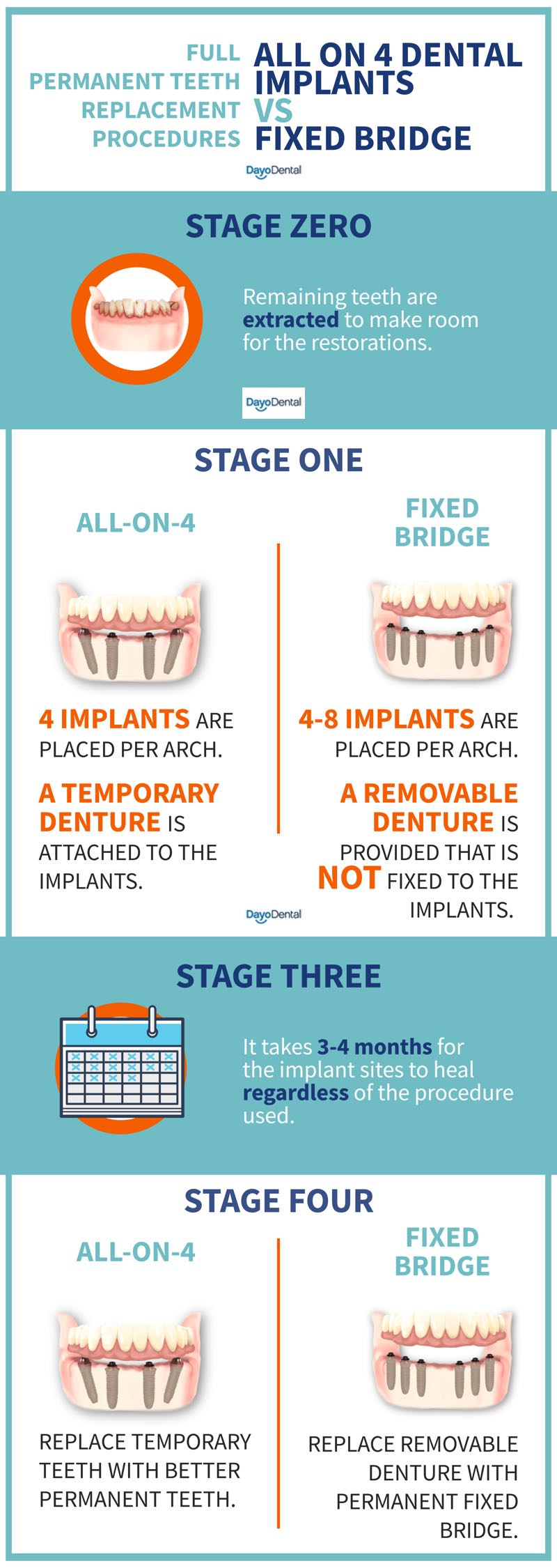 All on 4 dental implant treatment stages / process vs regular implant supported bridge / dentures