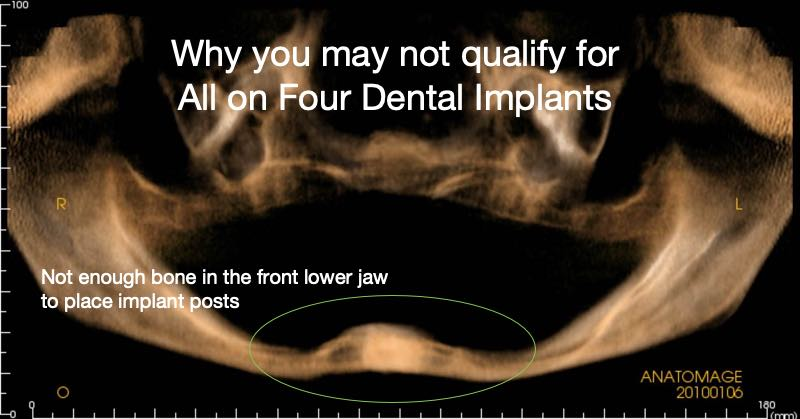Bone Grafting requirements for All on 4 Dental implants