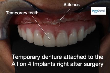 Teeth in a day All on 4 Dental Implants - Immediate load scenario where patient receives teeth right after surgery