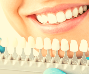 Choosing tooth colors for your implant.